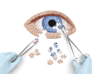 Non-Surgical Cataract Treatment